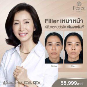Filler Peace Clinic